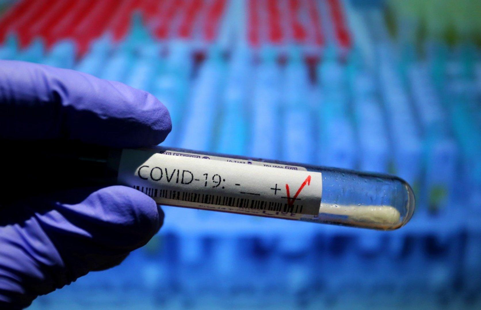53 души с корона вирусна инфекция са на интензивно лечение. Снимката е илюстративна