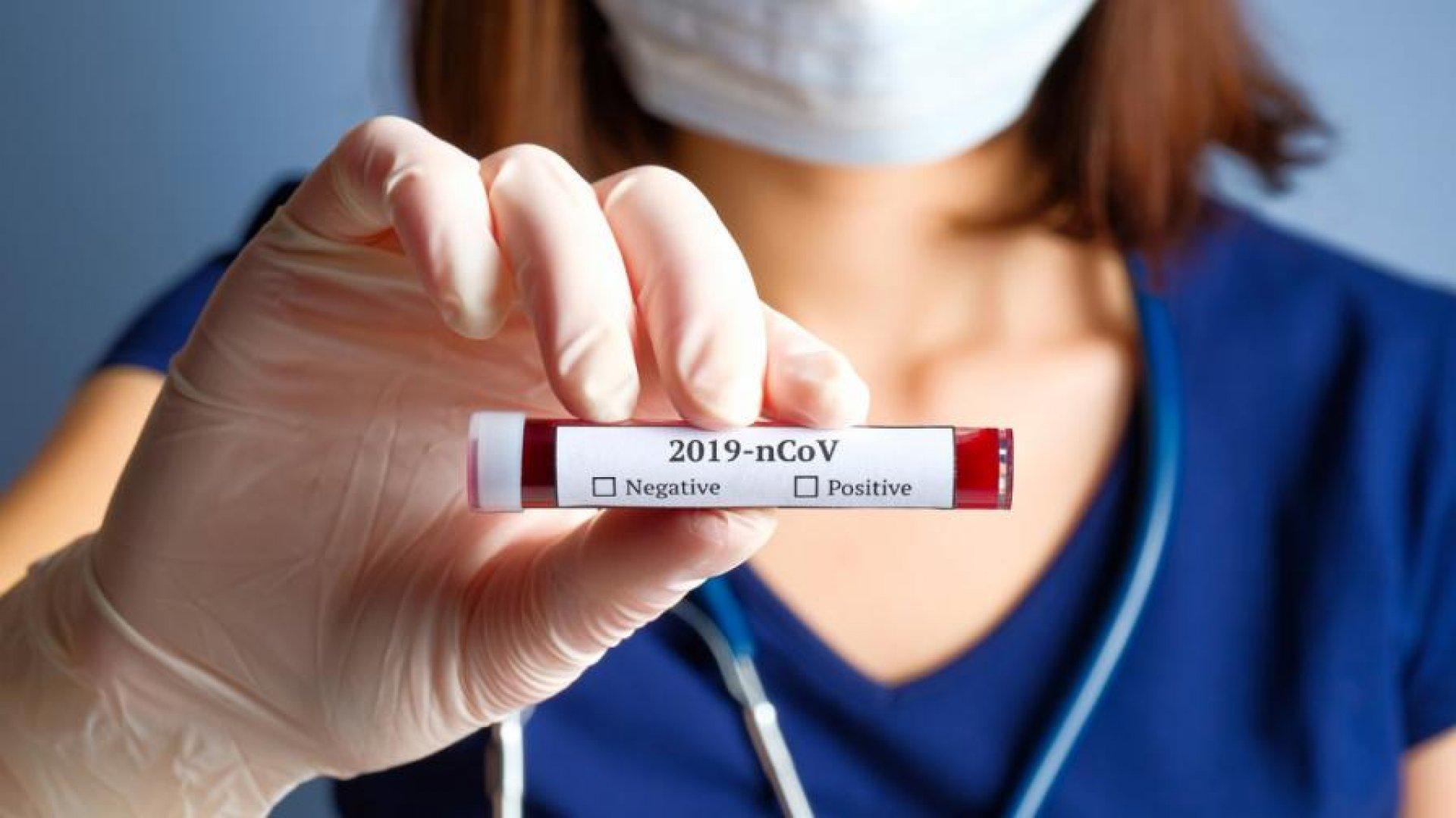 1,32%от изследванитепроби за корона вирус са положителни. Снимката е илюстративна