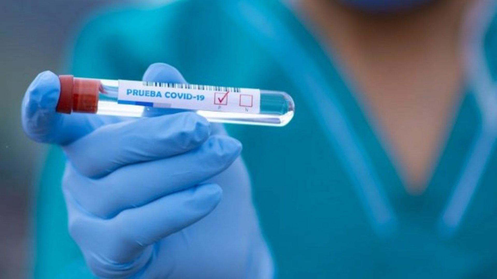 14 469 души в Бургас и региона са с положителни проби на корона вирус от началото на пандемията до днес. Снимката е илюстративна