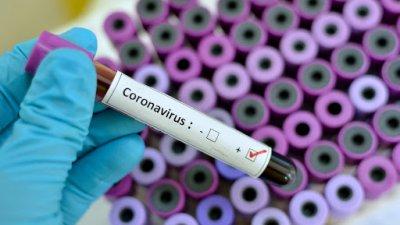 1 455 са активните случаи на заразени с корона вирусна инфекция. Снимката е илюстративна