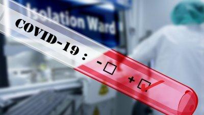 Потвърдените случаи чрезPCR теста са 240броя, а чрез бърз антигенен тест - 760.Снимката е илюстративна