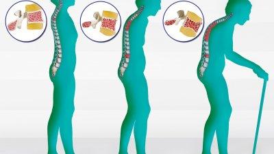 Когато теглото е под нормалното, също се увеличава рискът от остеопороза