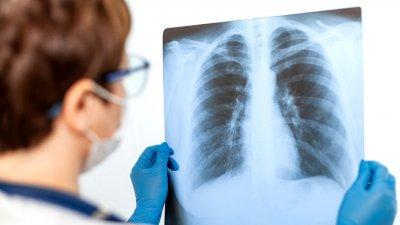 376 ренгенографии на бял дроб са направени в ковид зоните за последните две седмици. Снимката е илюстративна