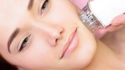 Принципът на действие на Vivace включва микроскопични перфорации в горния слой на кожата, извършвани с фини позлатени игли