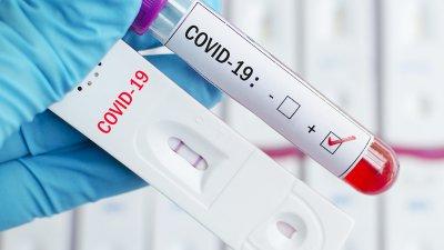 Положителните проби за изминалото денонощие са 12,62% от всички изследвани проби. Снимката е илюстративна